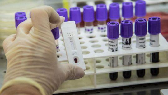 Coronavirus, gli asintomatici potrebbero avere una risposta immunitaria più debole al virus