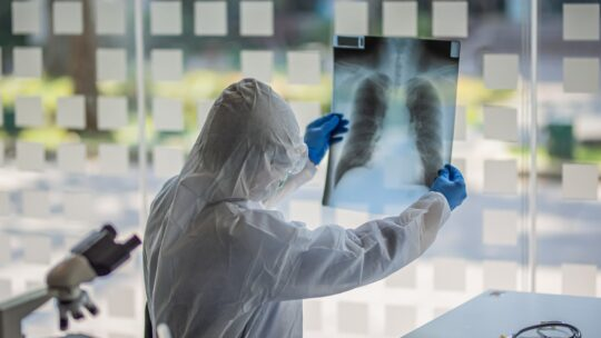 Due farmaci per l'artrite reumatoide diminuiscono la mortalità per Covid-19