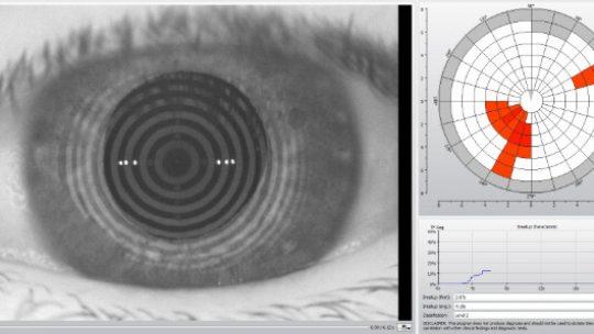 Mascherina, tra le cause della secchezza oculare